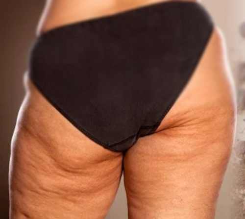Cellulite best way to get rid of Cellulite